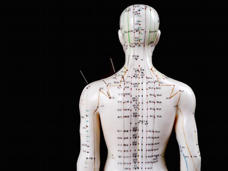 Acupuncture at Lymington Chiropractic Clinic